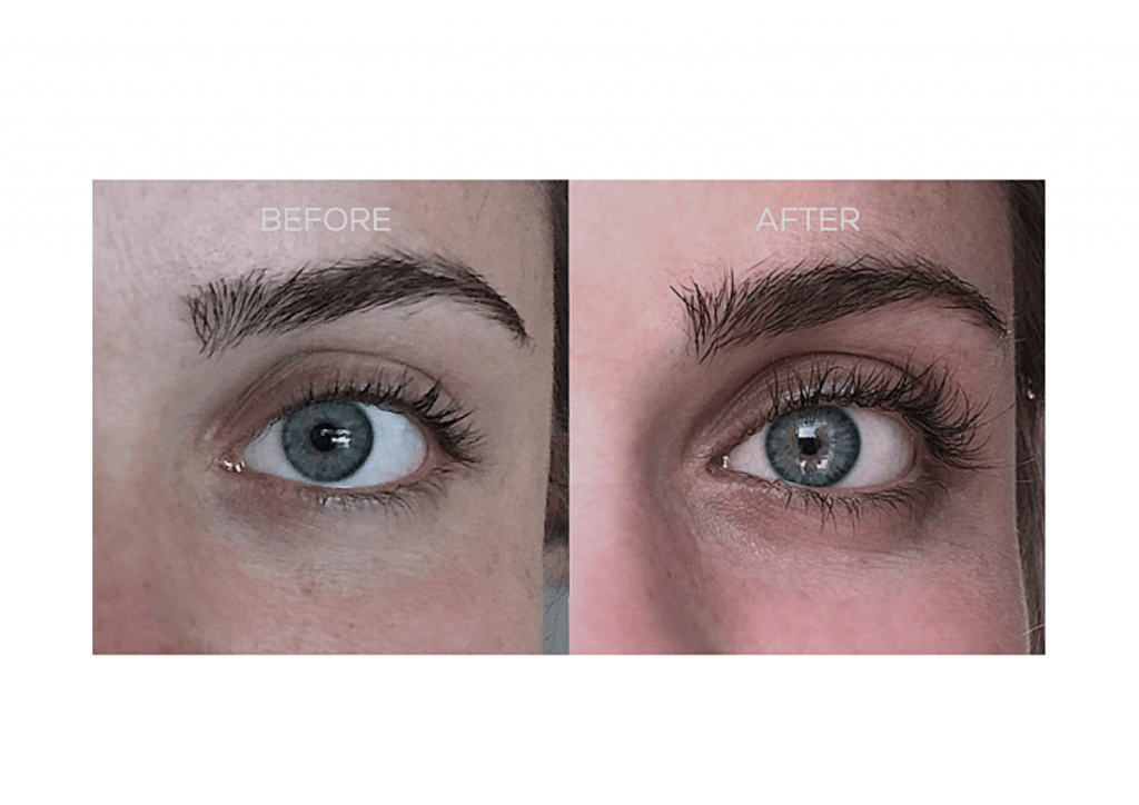 Nulastin Before After Reviews