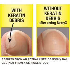 How To Use Nonyx Nail Gel?