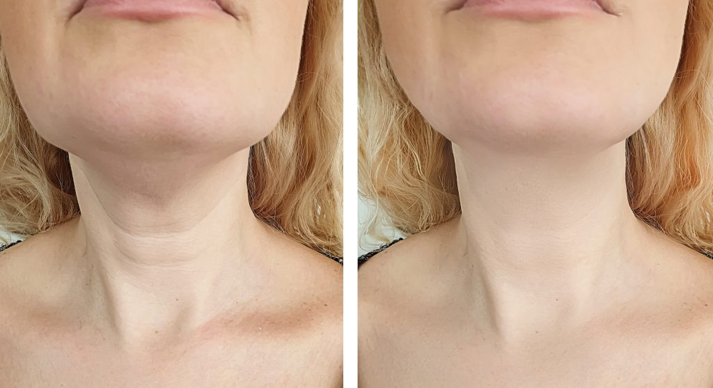 dermelect before and after