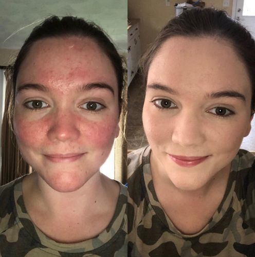 phoera foundation before and after